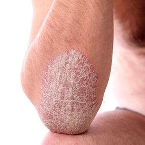 Psoriasis scars